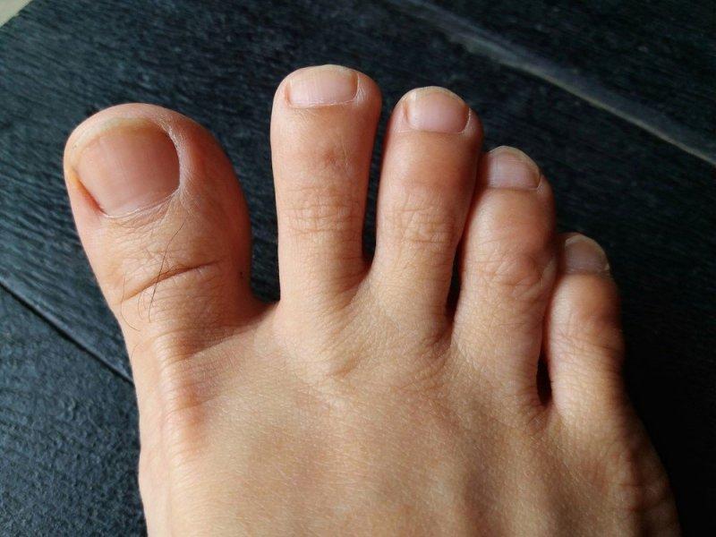 Ayak serçe parmağını duvara vurmak
